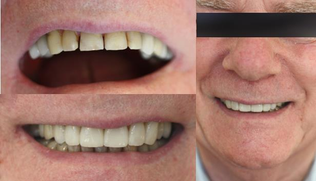 Porcelain Veneers