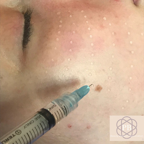 mesotherapy nappage 1a - 1.jpg