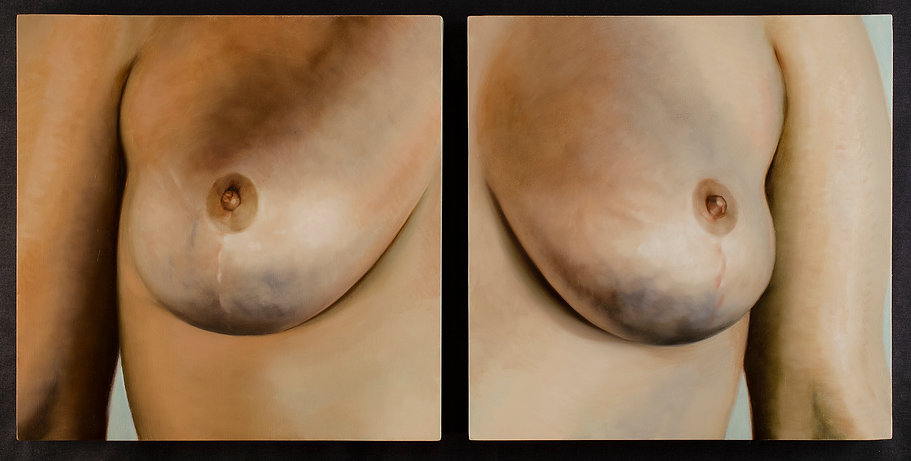 kirkhuff-two-breasts-web.jpg