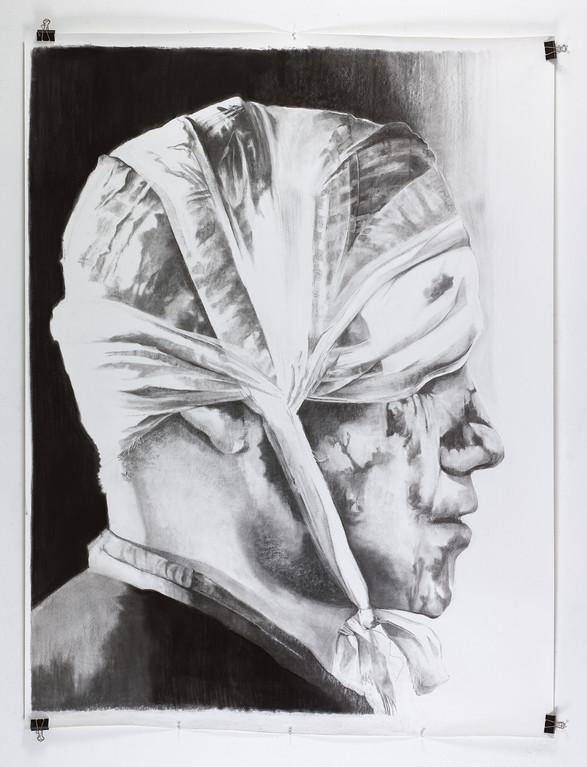 Bandaged Head 3