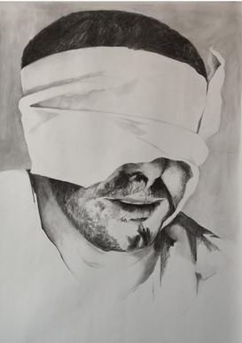 Bandaged Head 8