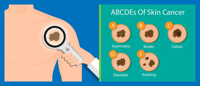 ABCDEs of skin cancer