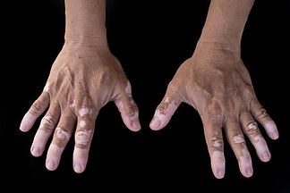 hand vitiligo