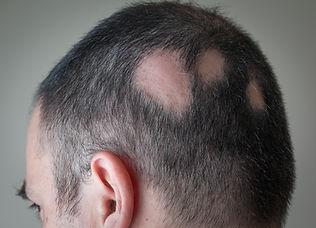 alopecia of the scalp