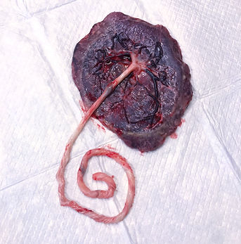 Beautiful Placenta