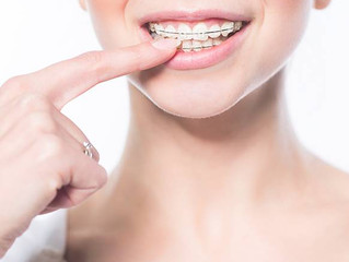 Never fear- ceramic braces are here!