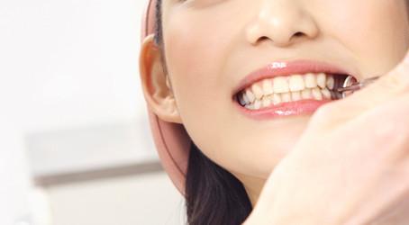 第74回:『歯のクリーニングって??』その4