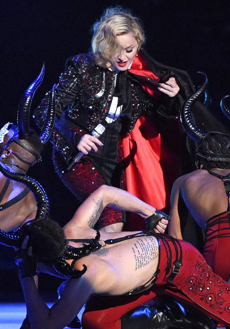 Madonna Explains Dramatic Fall On Instagram, Reassures Fans That She's Okay