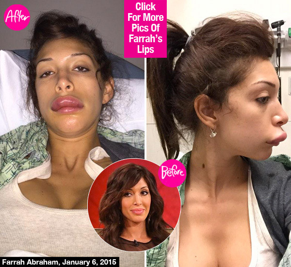 farrah-abraham-duck-lips-surgery-lead-1.jpg