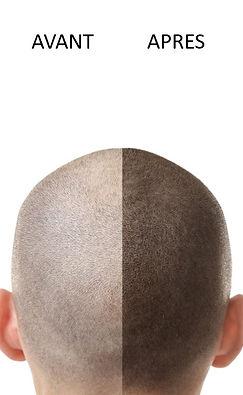 trico pigmentation MEP.jpg