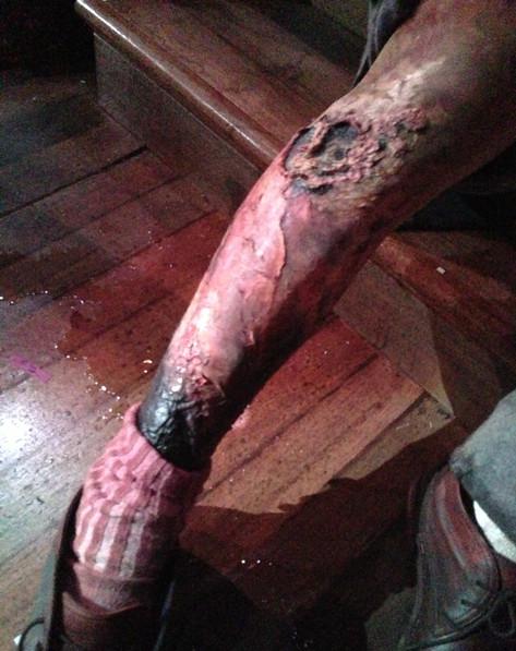 Gangrene Leg