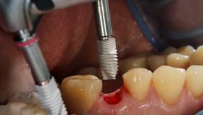 implant acıtır mı