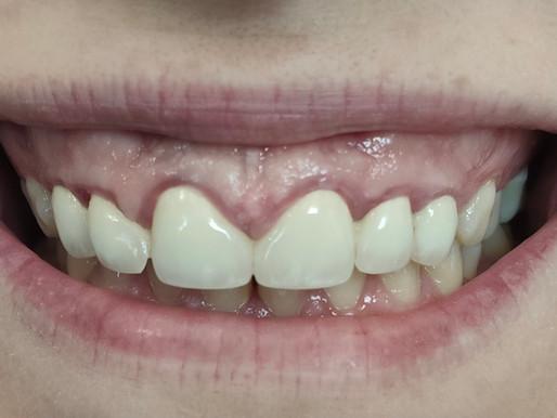 Gummy Smile Nedir