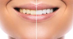 Diş Beyazlatma İşlemi