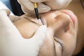 Curso microblaing
