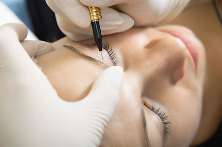 Eyebrows being treated with electrolysis permanent hair removal