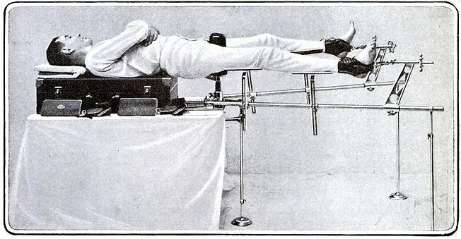 Wilting Fracture Setting Apparatus