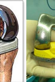 Orvosi alkalmazás (Titánium implantátum)