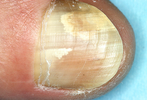 How to handle toe nail fungus