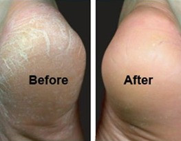 What causes Calluses & how can you prevent them?!
