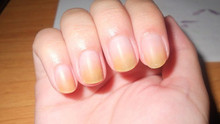 Yellow Stained Nails