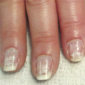 White Scuffed Nails after Gels?