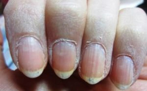 Dry Cuticle problems?