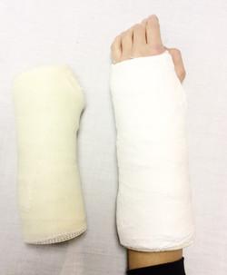 Arm Casts