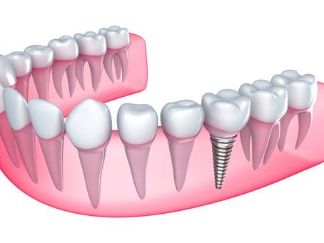 Qual a idade mínima para colocar implantes dentários?