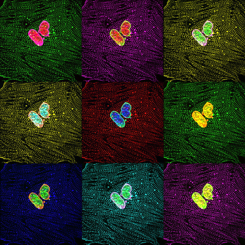 Butterfly Hearts By Dr Matthew Stroud Ma