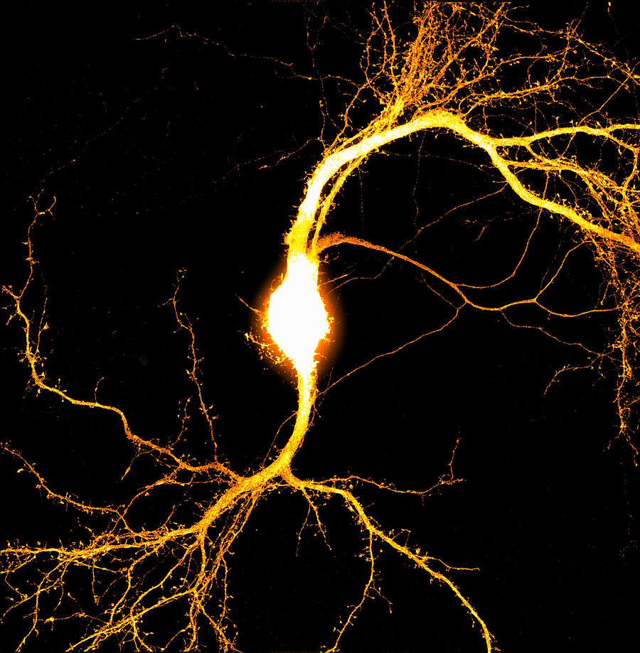 Rat Cortical Neuron By Dr Elizabeth Glen
