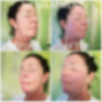 a treatment just for you oxygeneo facial