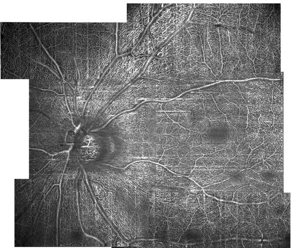 Visible light OCT angiography