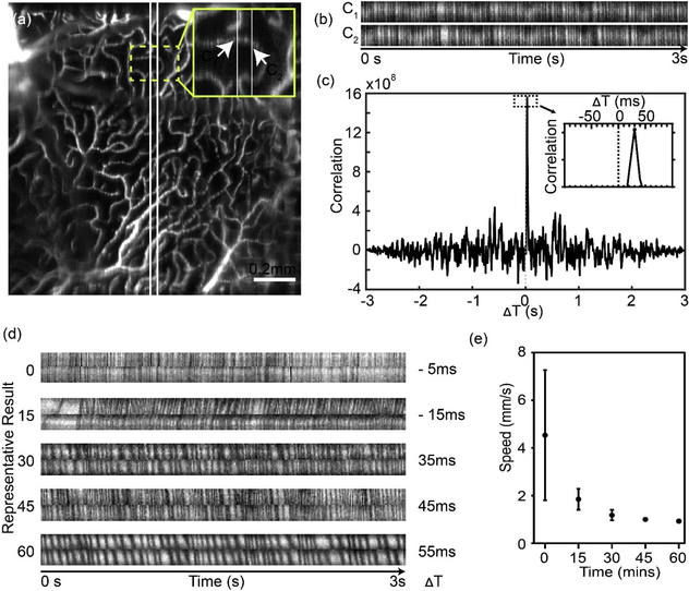Depth-resolved velocimetry in mouse retina by oSLO