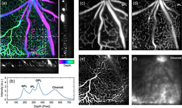 OSLO on mouse retina