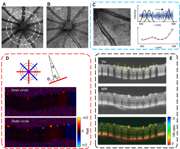 Visible and NIR OCT (vnOCT) on mouse retina