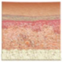 derma_cell_2d_wrinkle_after.jpg