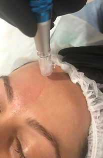 Skin needling.jpg