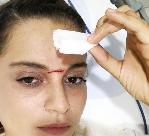 Kangana Ranaut's Stitches