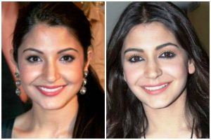 Anushka Sharma before and after plastic surgery