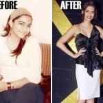 Sonam Kapoor Before and After