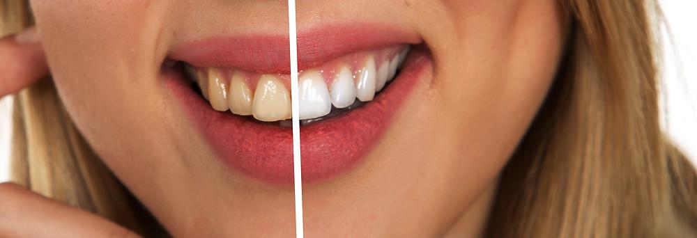 aparelho dental invisivel