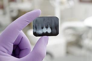 Radiografia de dente