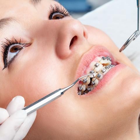 aparelho nos dentes