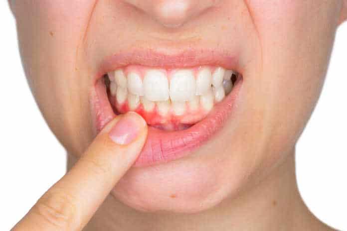 periodontite cronica e demencia