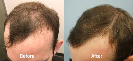 PRP-Results-Before-After.jpg