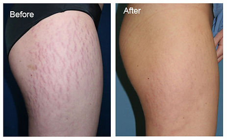 Stretch-Marks-Legs-BeforeAfter.jpg
