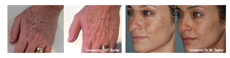 View-Lumeccas-Before-and-Afters-1.jpg