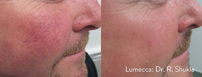 Lumecca-face-redness-before-and-after-sc
