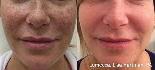 LH_2a_1tx_Freckles.jpg